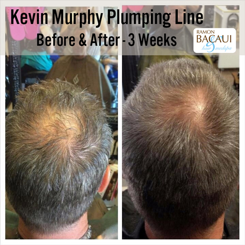 Kevin Murphy Plumping Line Before and After