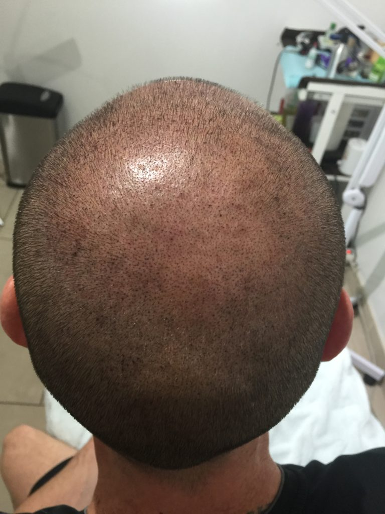 After Scalp Micropigmentation - Todd