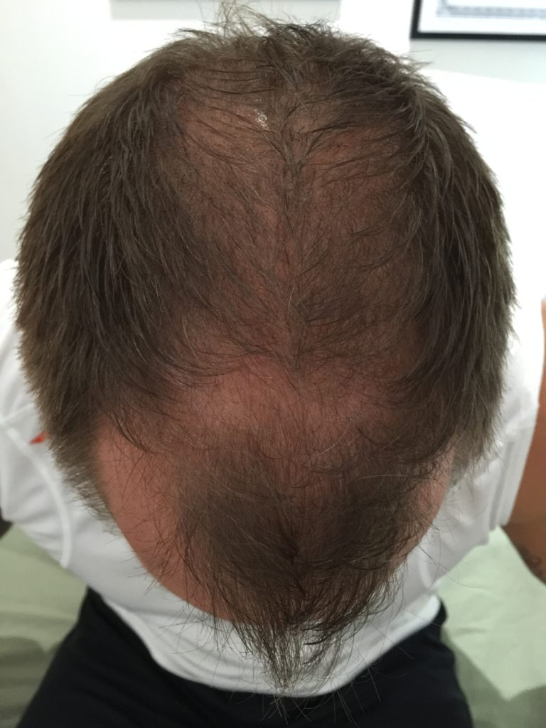 Before Scalp Micropigmentation