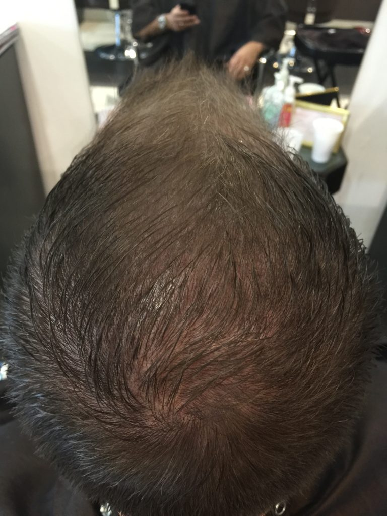 After Scalp Micropigmentation