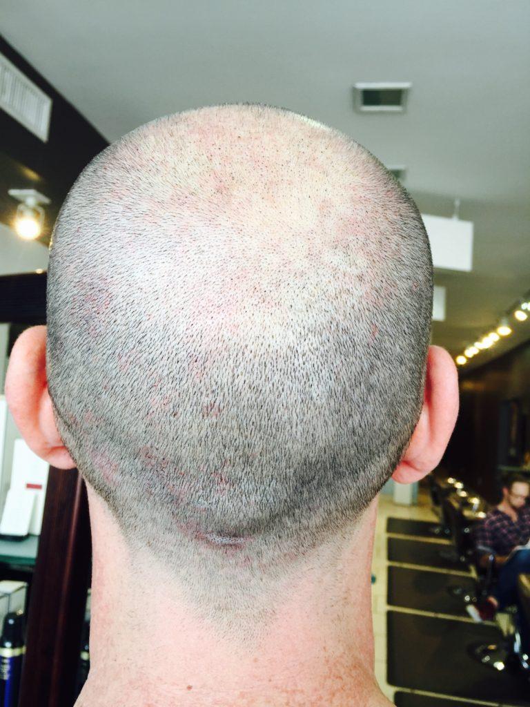Before Scalp Micropigmentation - Todd